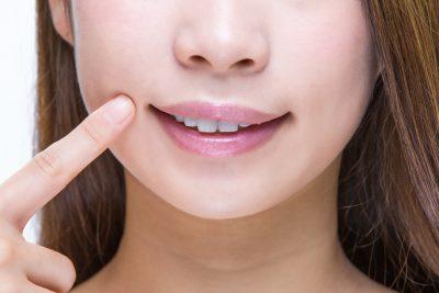 口角を指差す若い女性
