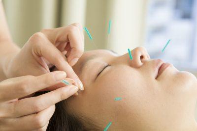 美顔鍼をうける女性