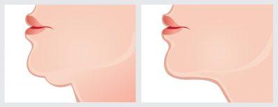 二重あご脂肪吸引手術の症例 イラスト