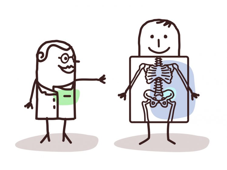骨盤のズレを指摘したイラスト
